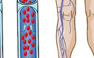 Симптомы и лечение тромбоза