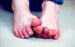 Осложнения и травмы после обморожения