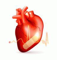 Как определить симптомы ишемической болезни сердца