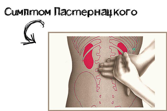симптом пастернацкого