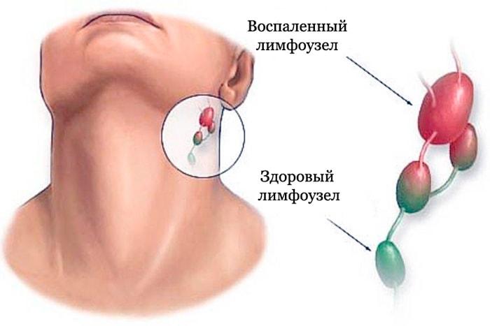 Здоровый и воспаленный лимфоузлы