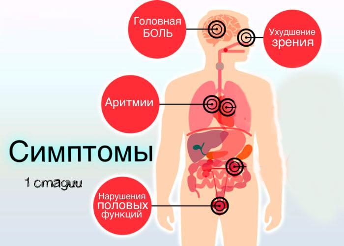 симптомы гипертонии 1 стадии