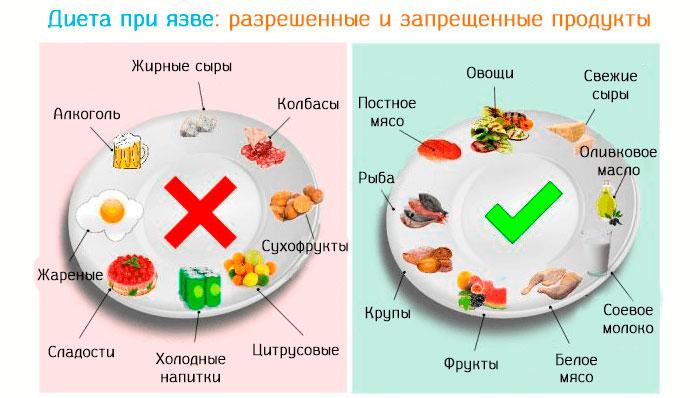 диета при язве желудка