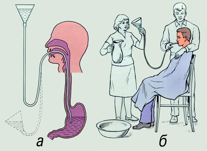 Промывание желудка с зондом