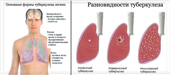 Разновидности и формы туберкулеза