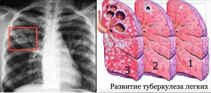 Развитие легочного туберкулеза