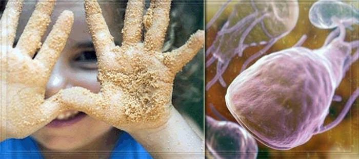 Лямблии и грязные руки