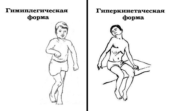гиперкинетическая и гимипленическая формы