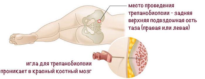 трепанобиопсия