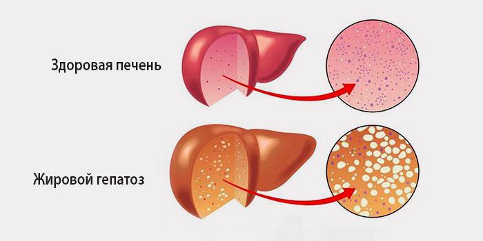 клетки печени при гепатозе