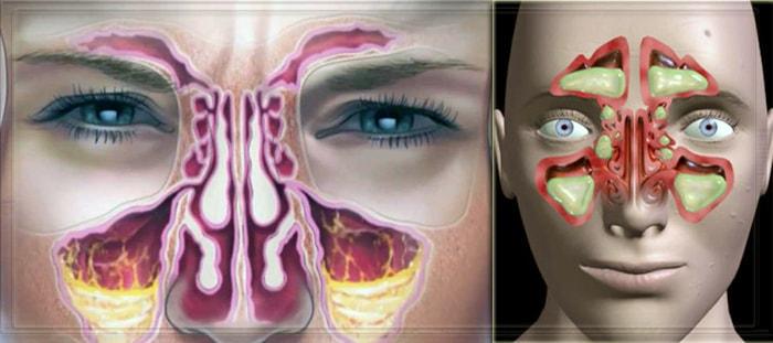 Локации гнойного содержимого в пазухах носа