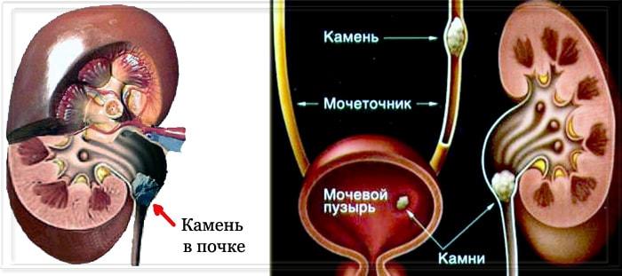 Признаки мочекаменной болезни