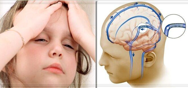 Повышенное давление у ребенка